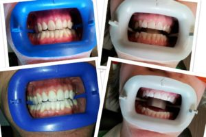 teeth whitening treatment before and after - First City Dental in Leavenworth