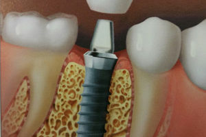 getting dental implants in Leavenworth