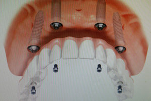 inside view of mouth with dental implants