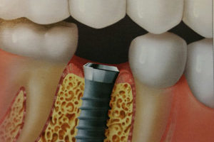 dental implant surgery Leavenworth, KS