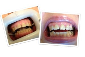 First City Dental teeth whitening before and after