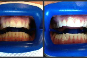 teeth whitening service in Leavenworth
