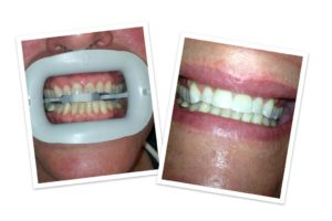 before and after a teeth whitening treatment in Leavenworth
